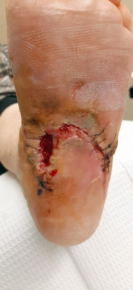 before stitches